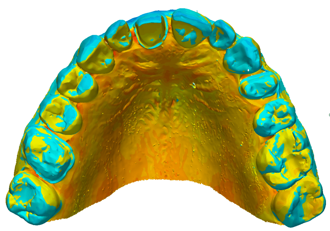 Digital Image of a Lower Jaw